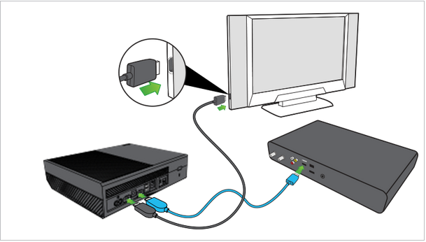 Illustration of set top box connected to XBox One, with Xbox One connected to the television with HDMI